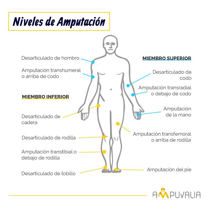 Infografia de Ampuvalia - niveles o tipos de amputación