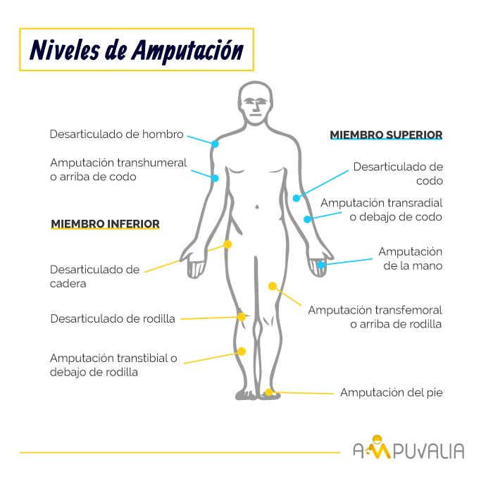 Infografia de Ampuvalia - niveles de amputación.